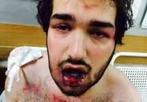Мурад Рагимов после пыток собровцами. Источник: pytkam.net