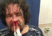 Андрей Рудомаха после нападения. Фото с ФБ-страницы Алексея Аванесяна