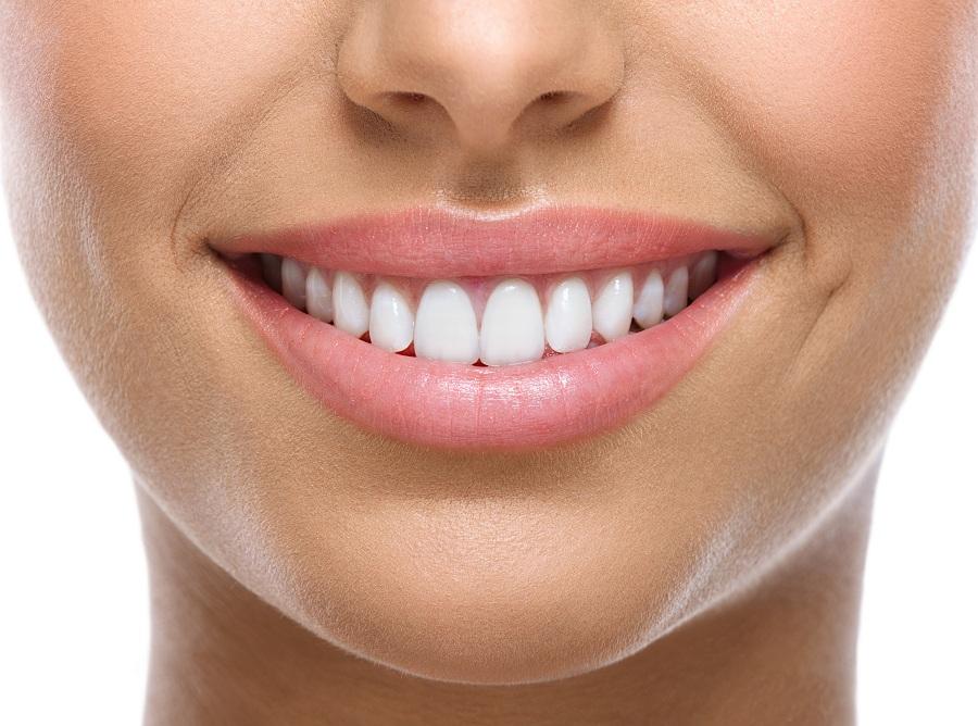 Верните красоту своей улыбке