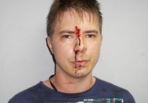 Станислав Калиниченко после избиения полицейскими. Фото из личного блога на newkuzbass.ru