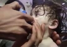 Пострадавший от химатаки ребенок. Кадр CNN