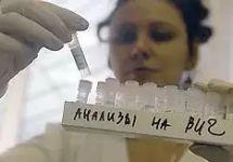 Анализы на ВИЧ-инфекцию. Фото: aids.ru