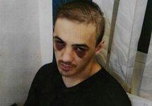 Абдулмалик Албагачиев после пыток. Источник: zona.media