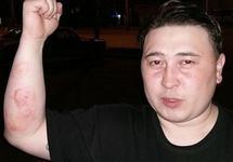 Томский активист Шульгин подвергся новым пыткам из-за попытки привлечь силовиков за прежние